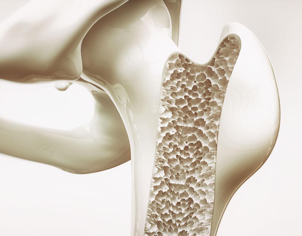 Q Pilates - Osteoporosis